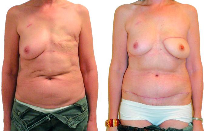 reconstruction mammaire, technique du Diep