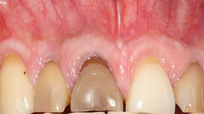 blanchiment des dents nantes