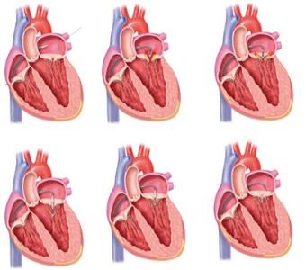 étapes du placement du clip dans le cœur