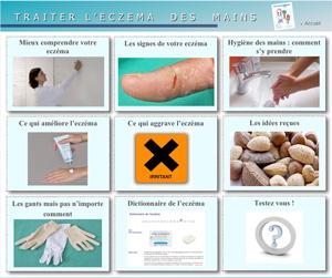 page d'accueil du site sur l'eczéma des mains