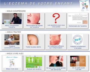 page d'accueil du site sur l'eczéma des enfants